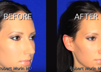 Rhinoplasty NYC Before and After